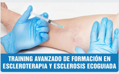Training Intensivo de Escleroterapia y Ecoescleroterapia